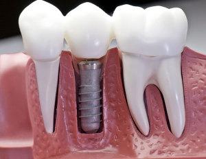Implanty - nowe oblicze stomatologii