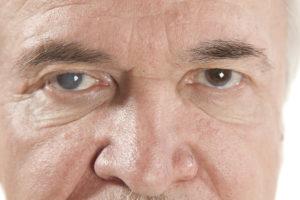 Jaskra to poważne! Zbadaj oczy i obserwuj te symptomy