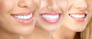 Stomatologia estetyczna – droga do pięknego uśmiechu
