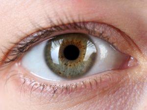 Stożek rogówki, retinopatia i krótkowzroczność przeciwwskazaniami do porodu naturalnego?