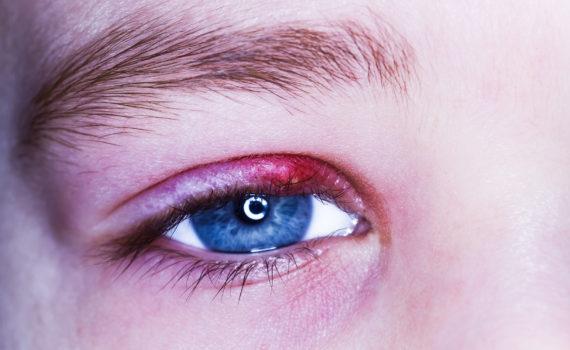 Zapalenie powiek - poznajemy objawy i sposoby leczenia