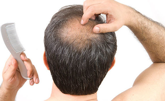 Wpływ stylizacji włosów na łysienie