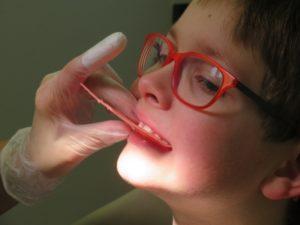 Leczenie ortodontyczne – podstawowe informacje