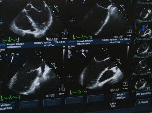 Aparat USG – jaki sprzęt medyczny wybrać?
