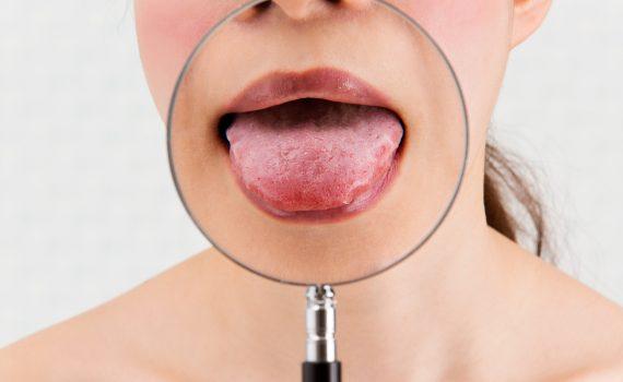 Jak wygląd języka świadczy o stanie zdrowia organizmu?