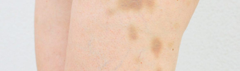 Siniaki i krwiaki podskórne – skąd się biorą?