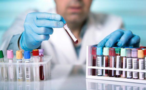 Rak szyjki macicy – co należy o nim wiedzieć?